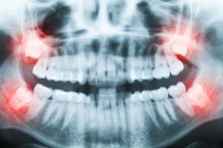 Wisdom Teeth Impacted