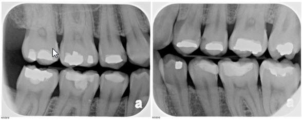 Intra-Oral Radiograph