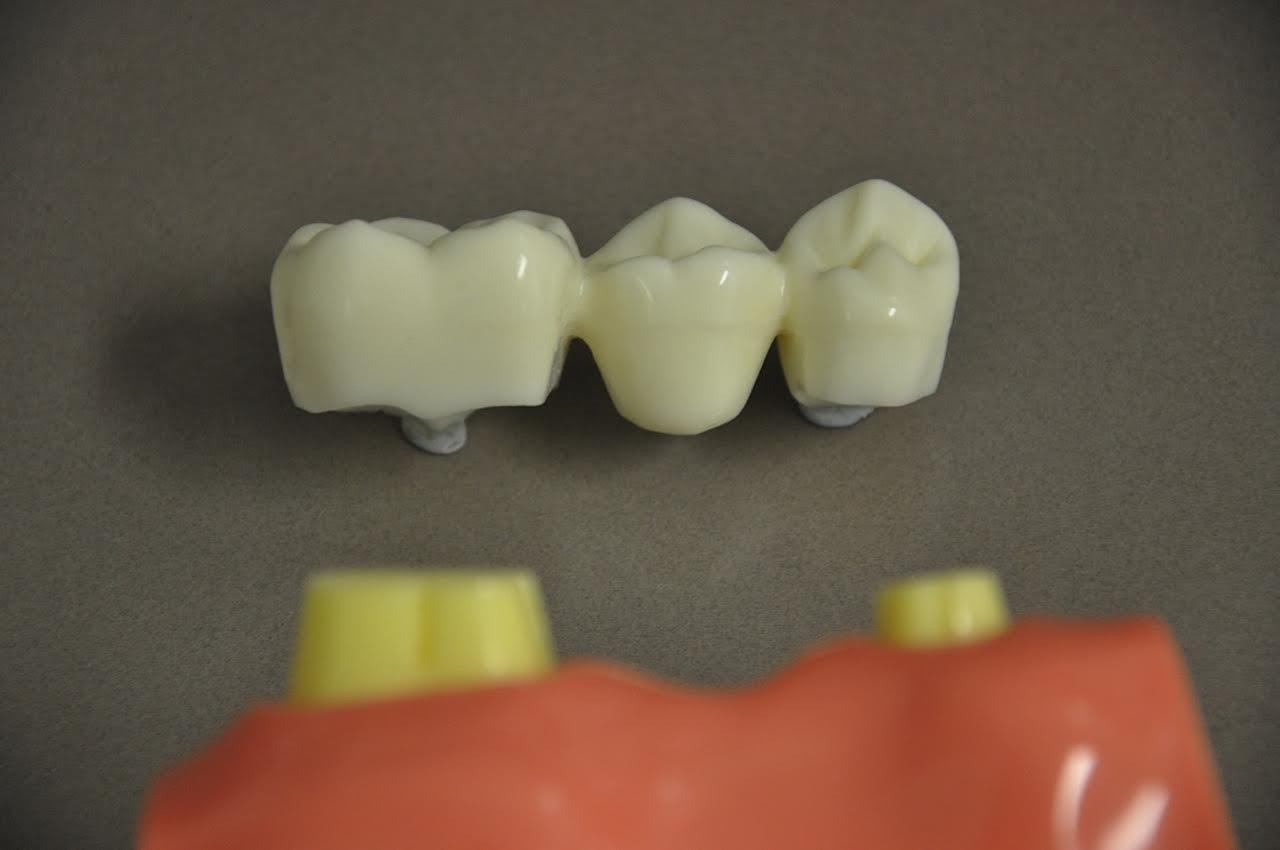 Dental Bridge Process