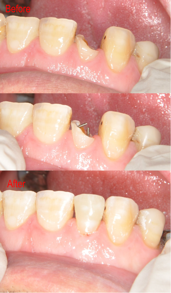 Before and After Dental image