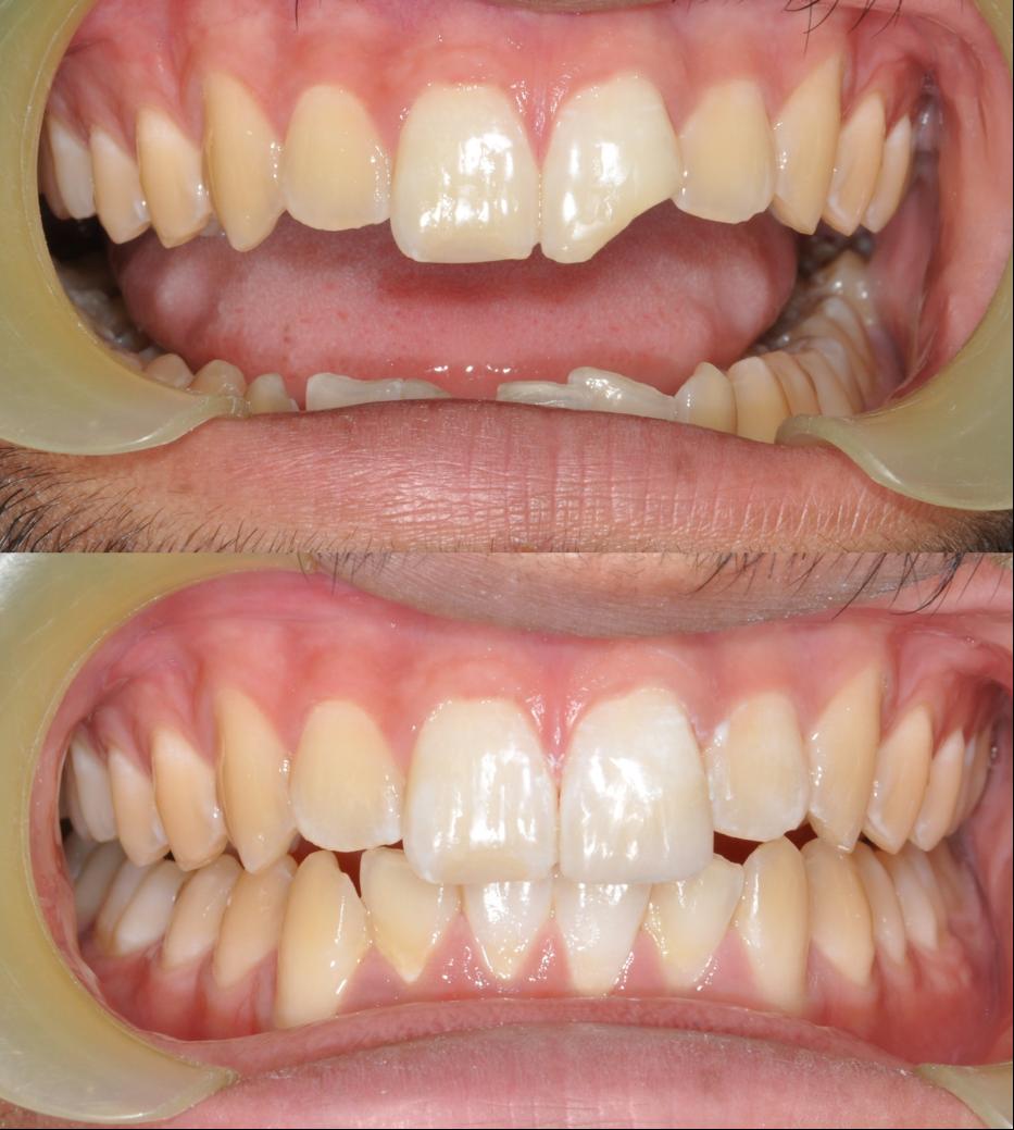 Tooth Restoration work at Burpengary Dental