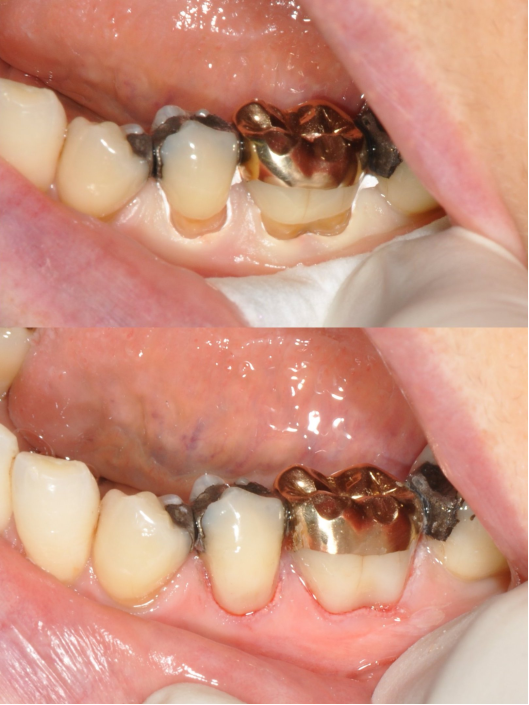 Repair of tooth brush abrasions