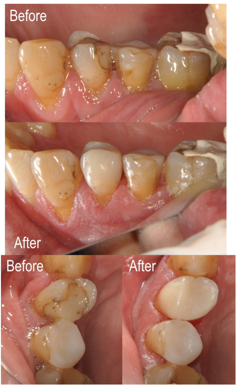 Before and after of dental work